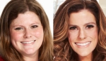 Rachel Frederickson 'The Biggest Loser' before and after (photos -- NBC)