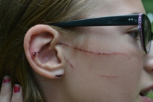 Rory Kliewer of Minneapolis shows some of the injuries she suffered in an otter attack.
