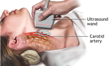 NIH image carotid artery screening