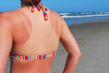 Sunburned woman at the beach