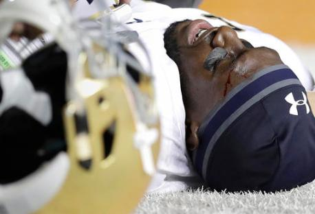 Notre Dame wide receiver Torii Hunter Jr. (16) lies on the turf after he was injured during a play during the second half of an NCAA college football game against Texas, Sunday, Sept. 4, 2016, in Austin, Texas. (AP Photo/Eric Gay)